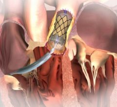 Melody transcatheter pulmonary valve, FDA expands indication, Melody for use in replacing failed surgical valves