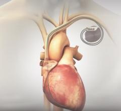 BackBeat Cardiac Neuromodulation Therapy Reduces Blood Pressure at Two Years
