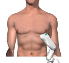 TeleHealthRobotics, Tele-Robotic Ultrasound, TRUDI, robotic ultrasound