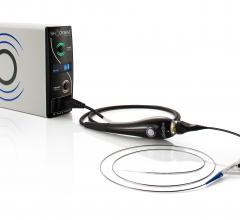 Shockwave Medical Announces U.S. Commercial Availability of Lithoplasty System