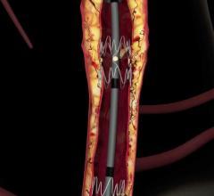 BEST-CLI Trial Examining Critical Limb Ischemia Treatment Options Nears Enrollment Goal