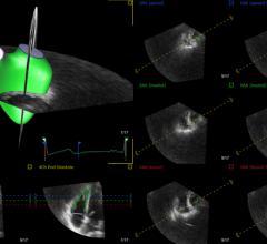 TomTEc, 4D RV-Function, advanced visualization, cardiovascular ultrasound