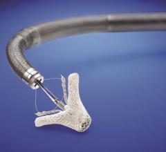 Abbott, purchase, Tendyne Holdings Inc., Cephea Valve Technologies, mitral valve therapies