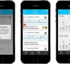 alivecore, alivercor, smartphone ECG, AF, Afrib, atrial fibrillation