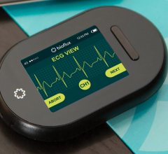 The Biotricity Bioflux remote ECG monitoring system.