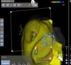 Biosense Webster, Confidense Module, Carto, multi-electrode mapping, 3-D