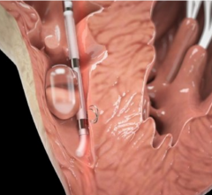 BioTrace Medical, first U.S. patients, Tempo Temporary Pacing Lead, EP lab, TAVR