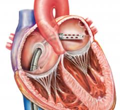 CardiacAssist Protek17 Arterial Cannula for TandemHeart pVAD
