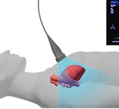 CDN to Integrate Advanced Cardiac Imaging Tools From DiA Imaging Analysis