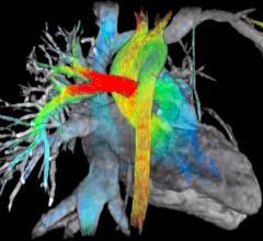 viosworks, cardiac MRI