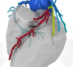 Heartflow FFR-CT can noninvasively assess the hemodynamic impact of coronary lesions to avoid the need for an invasive angiogram.