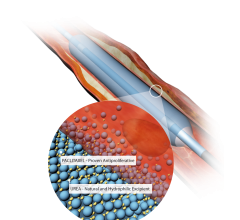 IN.PACT Drug-eluting Balloon Angioplasty IN.PACT SFA Clinical Trial