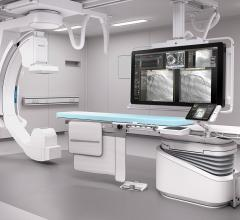 Philips, Azurion platform, angiography, interventional lab, global launch