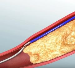 Philips Announces Relaunch of Pioneer Plus IVUS-Guided Catheter