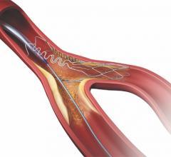 tryton side branch stent, dedicated coronary side branch stent