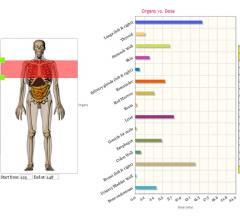 PACSHealth, Virtual Phantoms, partner, DoseMonitor, VirtualDose CT, radiation