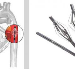 Cardiobridge, VAD, heart pump, hemodynamic support