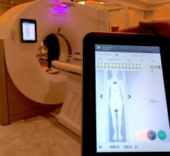 Siemens Go.Top cardiovascular edition CT scanner with its detachable tablets used by the tech to control the scanner so they can stay at the patient's side longer. #SCCT19