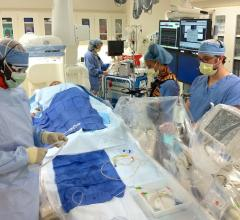 Cath lab staff working as a team to prepare for a procedure at Presbyterian Medical Center Cardiac Cath Lab, Charlotte N.C. Pictured are Barry Horsey RCIS, Emily Luna RN, RCIS, Adam Martin RCIS, Caleadia Jessup RN.