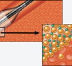 An illustration showing how the Amphirion_drug-eluting, drug-coated balloon technology works.