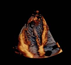 echocardiography, cardiac ultrasound, E95, GE Healthcare