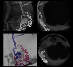Multi-Axis Angiography Systems Aid Radial Access | DAIC