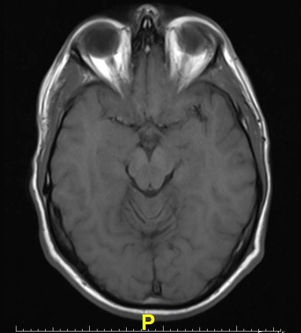 Brain Imaging Studies Seek Signs Of >> Mri Brain Scans Detect People With Early Parkinson S