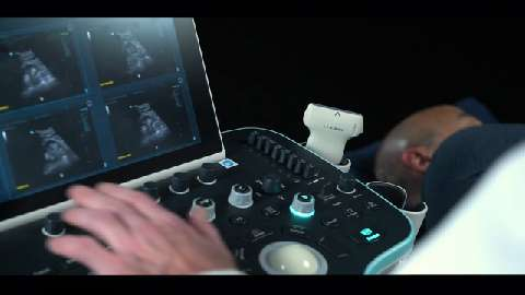 Mindray Introduces the Resona 7 Premium Ultrasound System