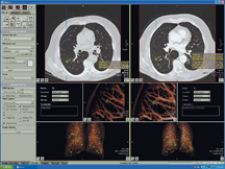 Vitrea solution integrates Vitrea workstation with R2's ImageChecker CT Lung CAD software for multislice CT.