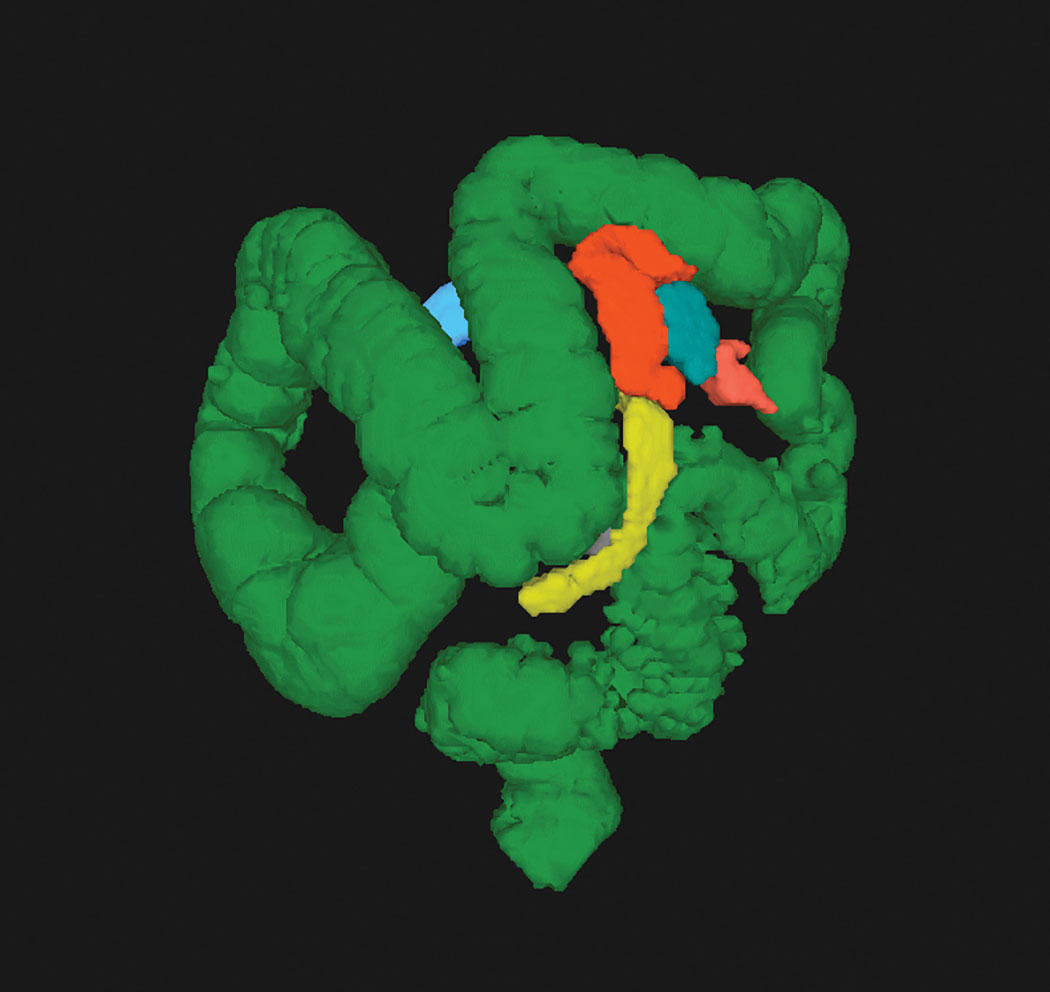 CT colonography (CTC) allows visualization of the entire colon in one image