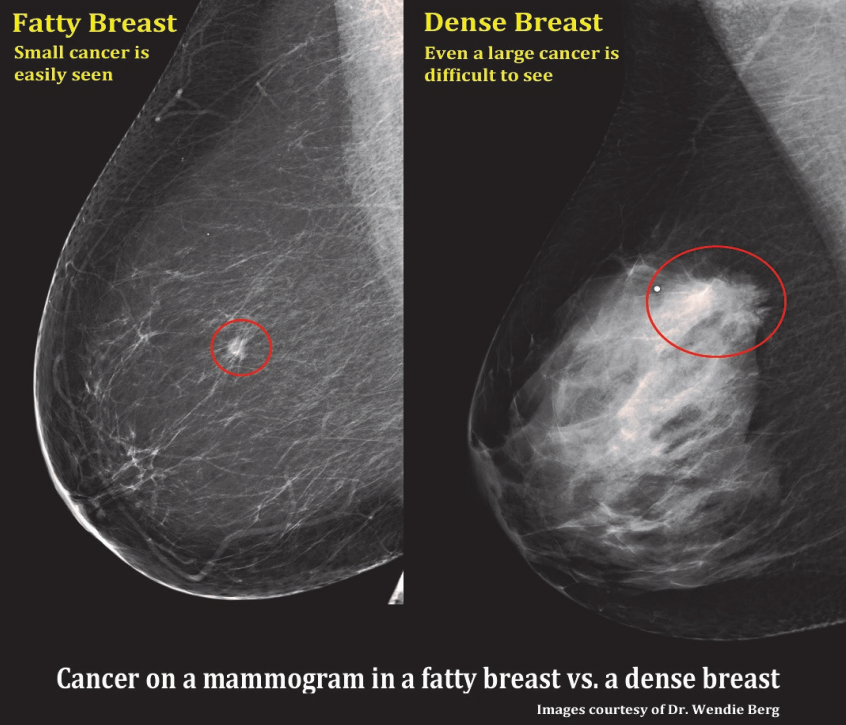 Fibroglandular densities & Mammographic Breast Density | ITN