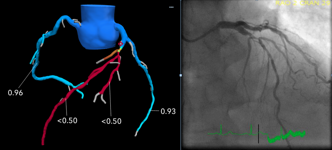 An example of FFR-CT imaging from Beaumont Hospital in Royal Oak, Mich. The left image shows a 3D generated image of the coronary tree from a CT scan evaluated with computational fluid dynamics to determine the FFR numbers. It shows a severe restriction of the left main artery which requires a stent to revacularize. The image on the right is a comparison with the invasive angiogram from the cath lab prior to stenting.
