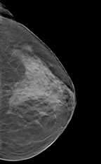 digital breast tomotherapy image with dense mass