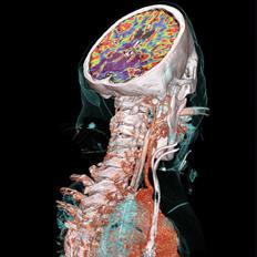 PET CT Siemens supplied Neuro VPCT ASplus