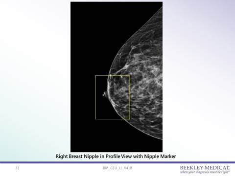 Upon call-back, a pellet marker was placed on the nipple and nipple in profile view was taken, confirming opacity seen on the prior 3D mammogram was the nipple superimposed over the anterior aspect of the breast.