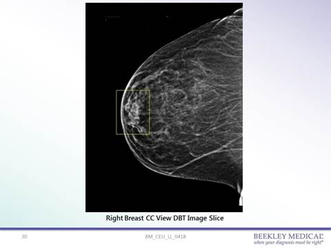 42-year-old female patient presenting a yearly routine screening mammogram in 3D. Right CC shows an opacity in the anterior aspect of the breast in the retroareolar area.