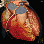 A 3-D rendering of a Cardiac CT angiography imaged by a Siemens Somotom Definition Flash CT scanner.