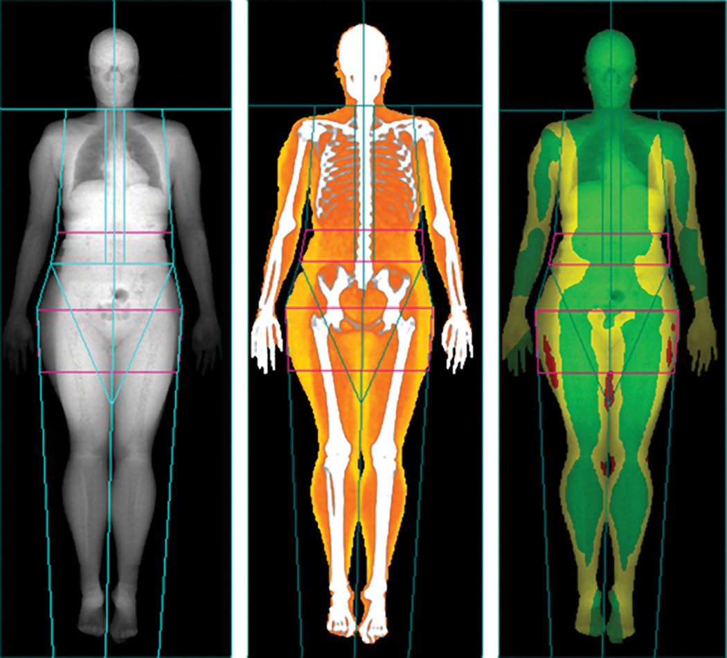 Body scans, Lunar iDXA