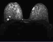 Breast MR image showing tumors that were obscured by dense breast issue on a mammogram.