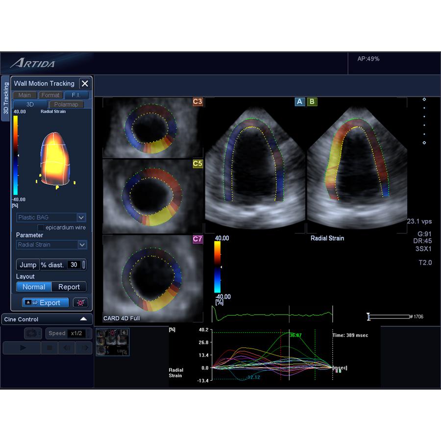 cardio-oncology, Toshiba echo, toshiba ultrasound