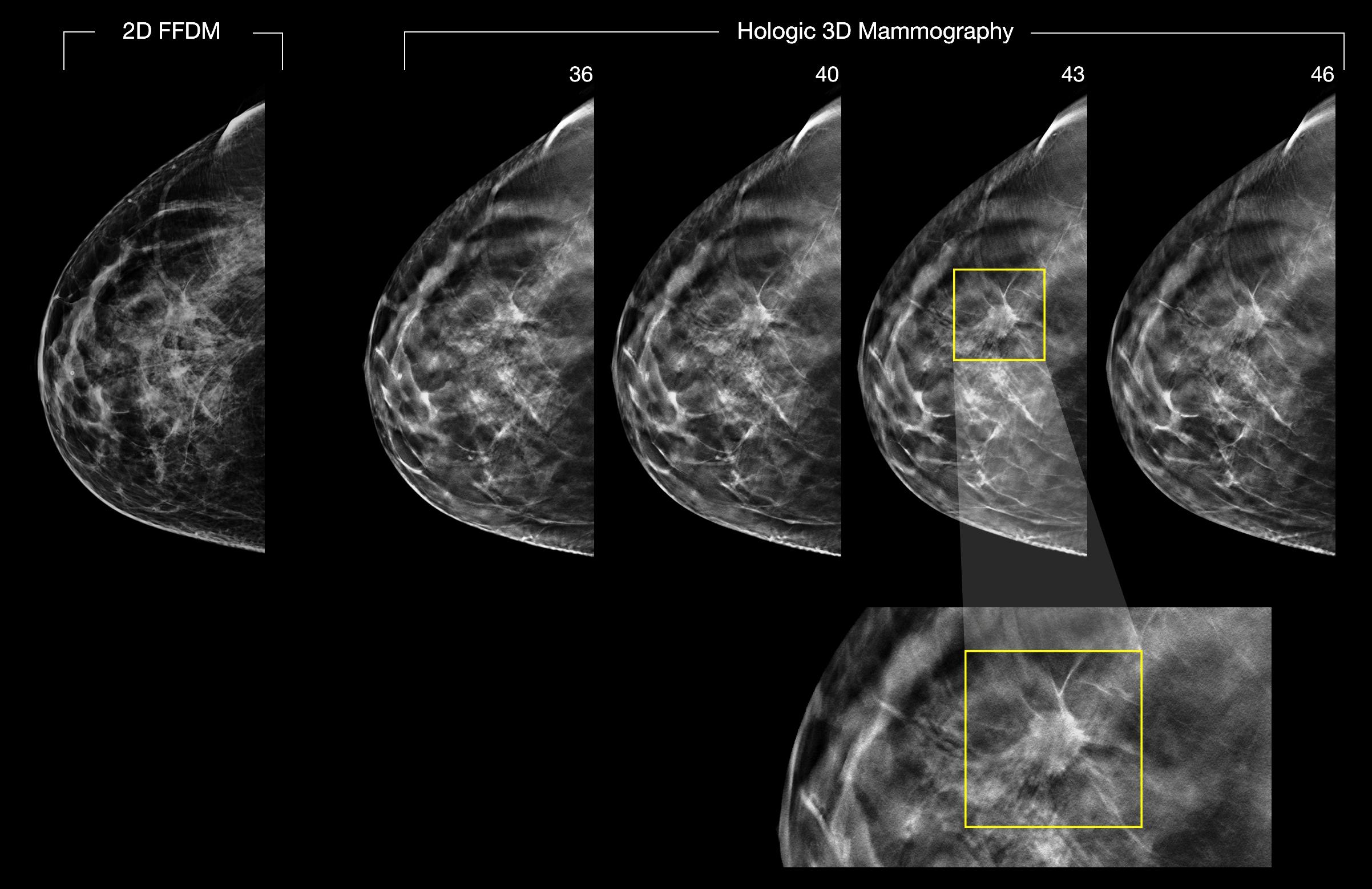 2-D and 3-D digital breast images