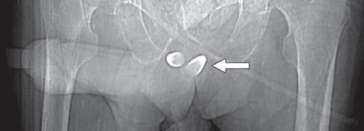 CT scout image from contrast-enhanced CT shows erectile implant in a transgendered female; stainless steel and silicone anchors (arrow) transfixed to pubic bone are asymmetric.  transgender radiology images