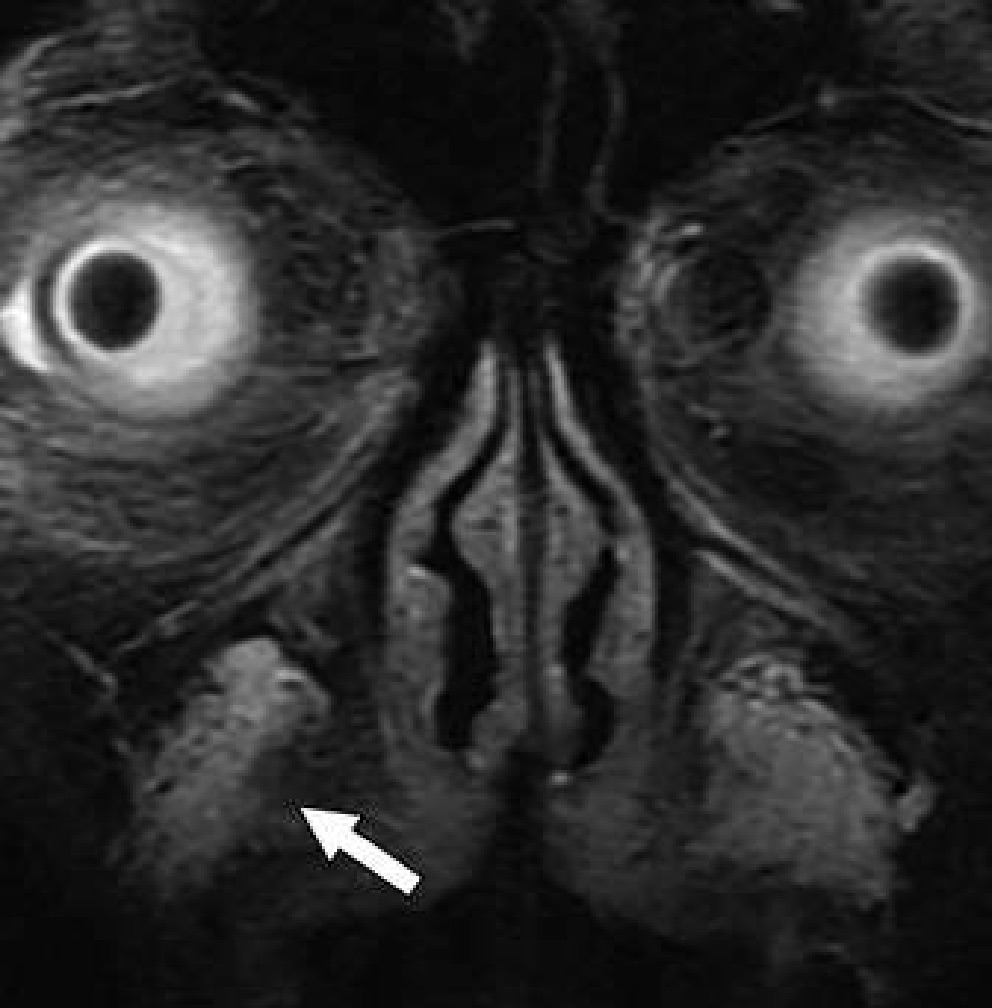 Maxillofacial Contouring for a transgendered male. FLAIR MRI image shows filler injection material in right nasolabial fold (arrow). transgender radiology images