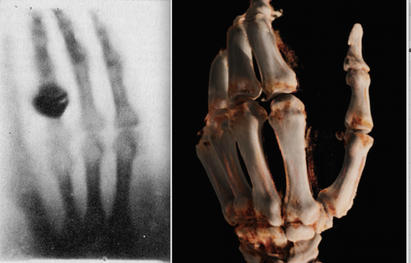 Left, the first X-ray ever made of Roentgen's wife's hand in 1895. Right, a cone-beam CT 3-D reconstruction of a hand in 2015 using a new robotic digital radiography (DR) X-ray system.