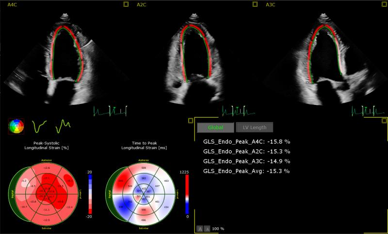 AutoStrain LV application image courtesy of Philips Healthcare
