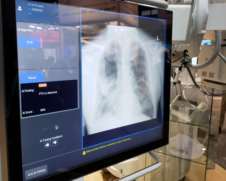 GE Healthcare demonstrated an experimental X-ray-based algorithm, designed to be embedded in its high-end portable X-ray machine, the Optima XR240amx