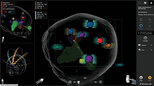 Brainlab Elements, ASTRO, radiation therapy