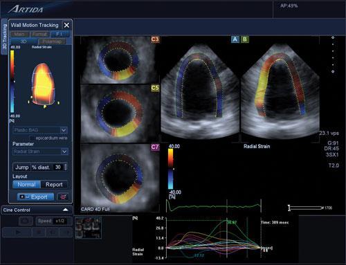 ultrasound, cardiotoxicity