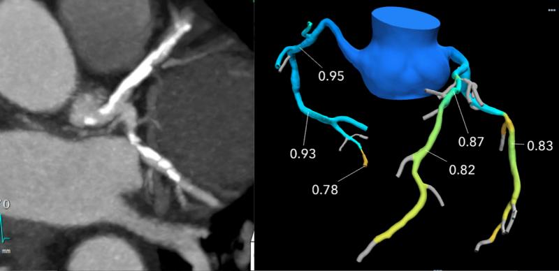 This example of a coronary CT exams on the left shows what looks like severe coronary blockages due to calcified plaques. However, the FFR-CT image of the right  shows the FFR analisys and no stent is needed.  Imaging courtesy of Beaumont Hospital in Royal Oak, Mich.