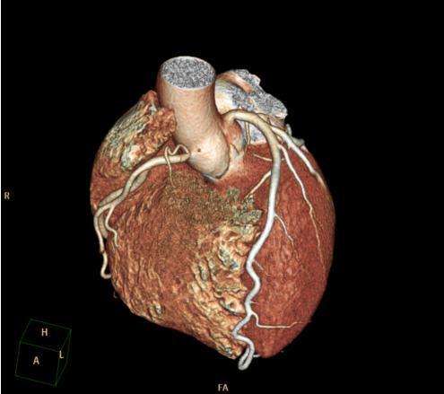 BioImage study, Mount Sinai, cardiovascular disease, ultrasound, CT, detection